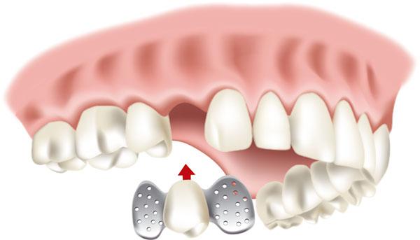 Ästhetischer Zahnersatz - Kronen, Brücken, Prothesen